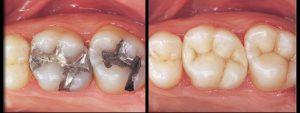 Dental Bonding - Marielaina Perrone DDS