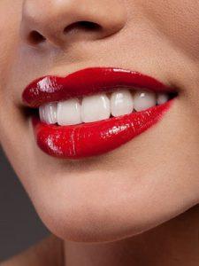 Dental Implants Marielaina Perrone DDS
