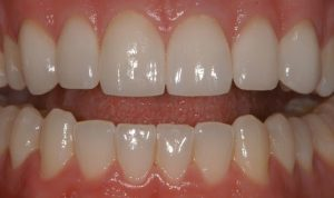 After Cosmetic Dentistry Marielaina Perrone DDS
