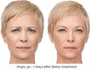 Marielaina Perrone DDS Botox Cosmetic