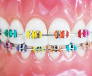 Marielaina Perrone DDS Orthodontist