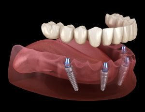 Las Vegas All On 4 Dental Implants Smile Makeover