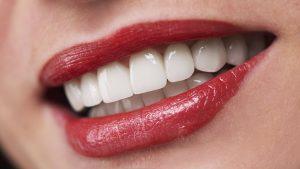Henderson NV All On 4 Dental Implants